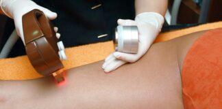 depilator laserowy a epilacja